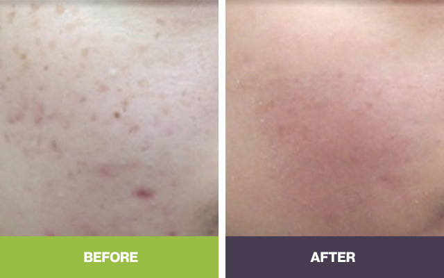 Acne Treatment Adelaide Skin Doctor Sa