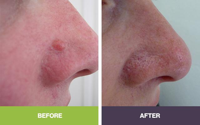 Mole Removal | Adelaide | Skin Doctor SA