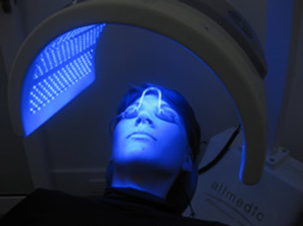 photodynamic-therapy