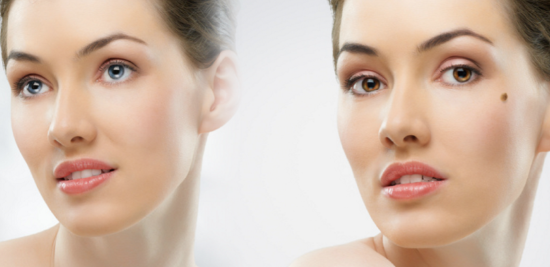 Cosmetic Mole Removal Adelaide | Skin Doctor SA | Dr Ron